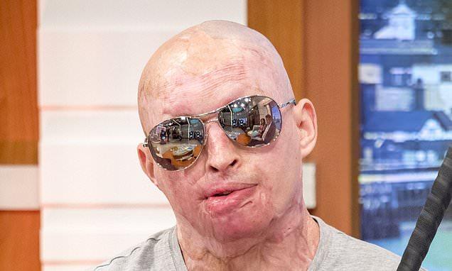 Acid attack victim to sue police