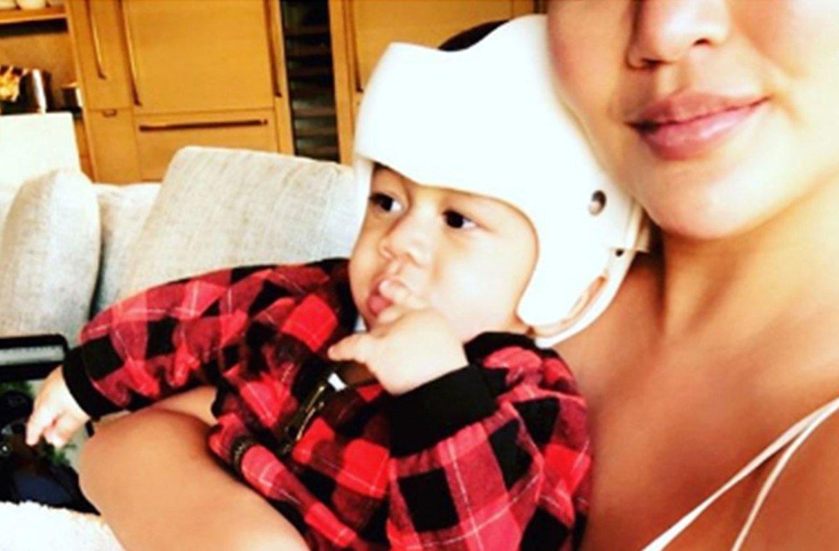 Chrissy Teigen Reveals Son Miles Needs Helmet For 'Slightly Misshapen Head'