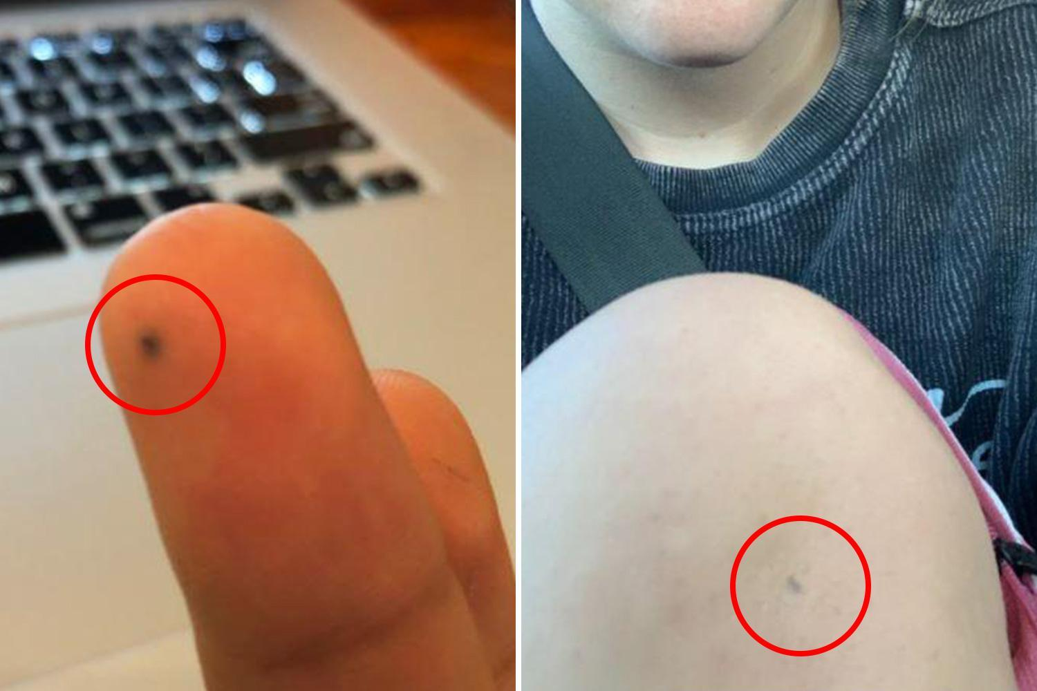 People share photos of lead stuck under their skin years after being stabbed with a pencil at school