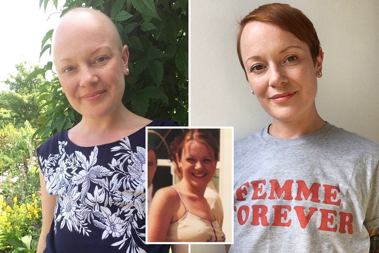 I refused a breast construction after having a double mastectomy