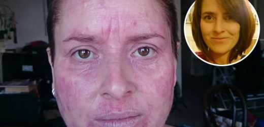 Woman's skin 'hot enough to fry an egg on after beer causes extreme eczema flare up'