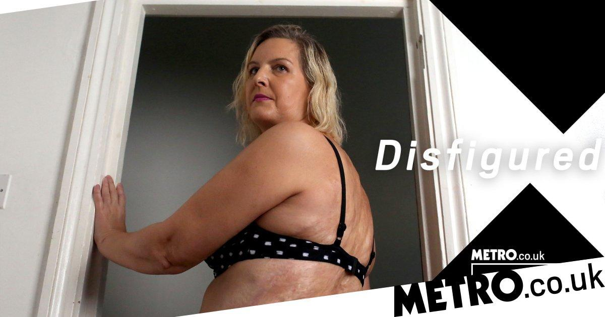 My Label and Me: Being called disfigured may make you uneasy but I love it