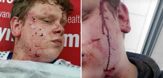 Teen scarred for life in slash attack slams police as 'they fail to charge attackers over lack of evidence'