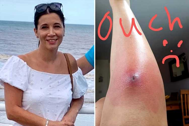 Mum nearly died when poison from spider bite tracked down her leg triggering killer sepsis