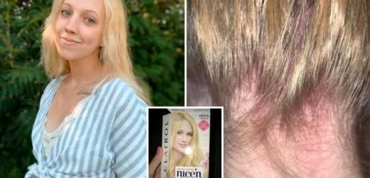 Teen rushed to hospital with chemical burns and loses her hair after dying her roots blonde with an at-home kit – The Sun